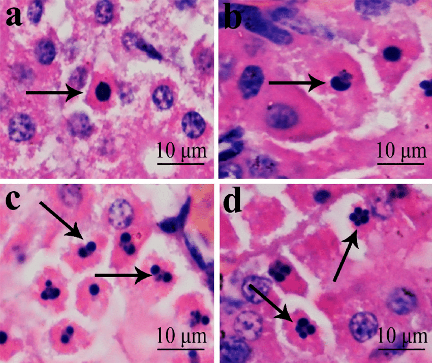 Morphological-changes-of-apoptotic-cells-a-In-the-apoptotic-cell-cytoplasm-was.png